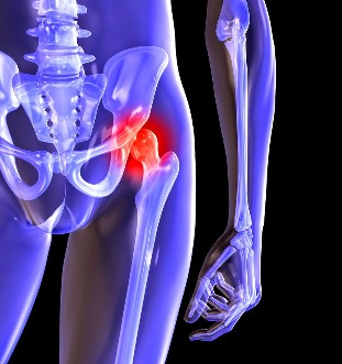 The deformation of osteoarthritis of the hip
